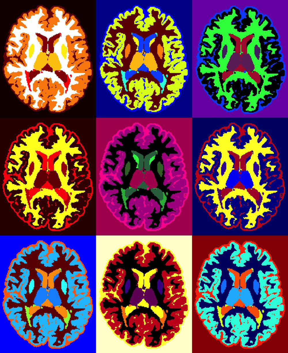 NWB:N supports storage and use of data from complex neurophysiology experiments and enables collaboration and sharing, reuse, and reproduction of data and analysis across teams and projects. Image shows MRI scans of a person with multiple sclerosis. (Credit: Ilena George and Daniel Reich, National Institute of Neurological Disorders and Stroke, National Institutes of Health
